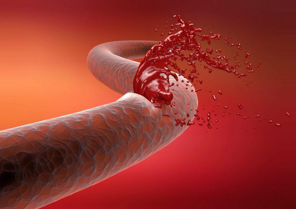 hemofili nedir-iyi21